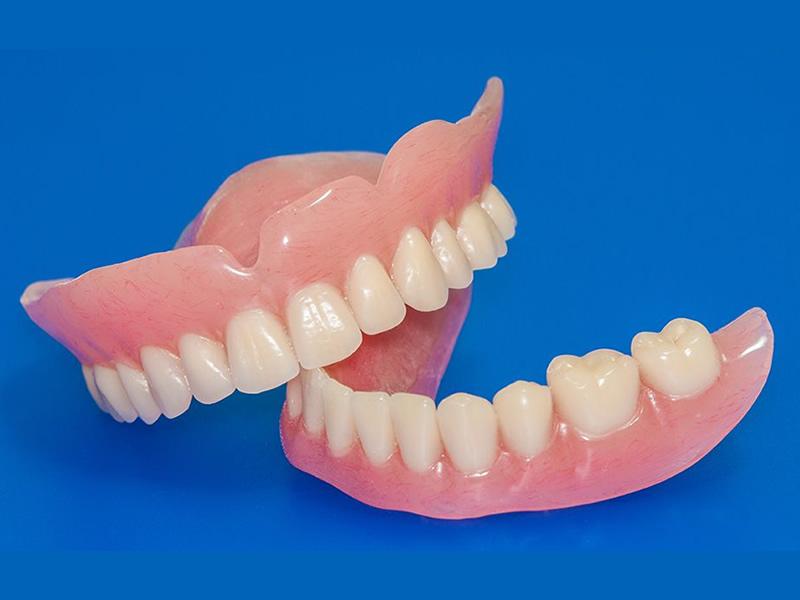 La endocorona de cerámica en la restauración dental